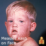 Protecting Your Baby from a Measles Outbreak FAQs